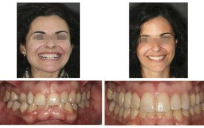 Caso 1 – Ortodoncia Implante en Canino Superior y Esbozo Bioestético