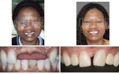 Caso 5 – Ortodoncia regeneradora en la ausencia de tres dientes anteriores