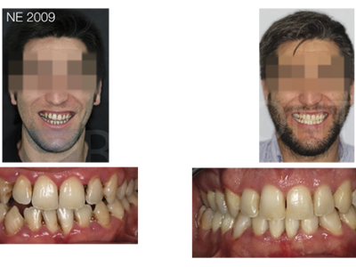 Caso 9 – Ortodoncia intersisciplinaria con corticotomia y oclusión final bioestética