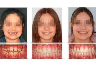 Caso 13 – Mordida abierta esquéletica y DCM tratadas con control vertical y bioestética