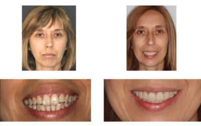 Caso 11 – Dolor oro facial, Reabsorción bicondilar, D.C.M. y solución interdisciplinaria (Parte 1 – 2009 hasta 2014 y Parte 2 – 2014 a 2020 MODJAW)