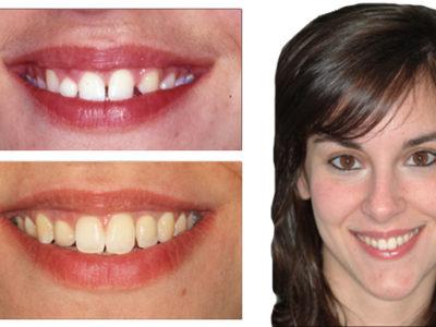 Caso 12 – Agenesia de laterales superiores, discrepancia positiva e implantes. Evolución de 11 años
