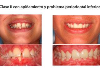 Caso 15 C – Clase II con apiñamiento y problema periodontal inferior en paciente infantil