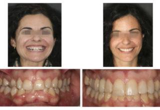 Ortodoncia Implante en Canino Superior y Esbozo BIOESTETICO
