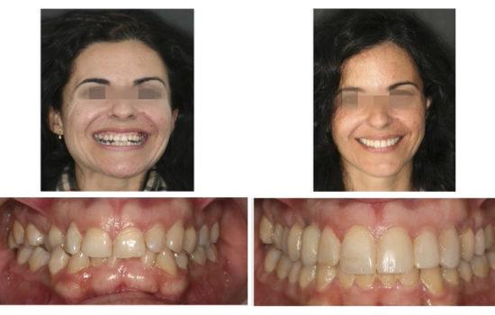 Ortodoncia Implante en Canino Superior y Esbozo BIOESTÉTICO