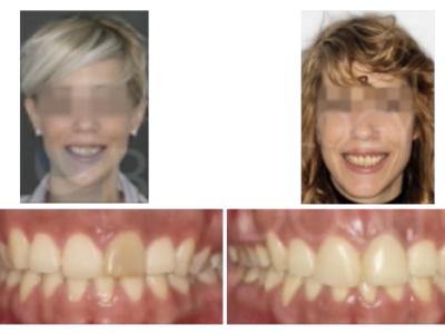 Caso 4 – Extrusión ortodóncica, corrección clase II y rehabilitación implante en 21