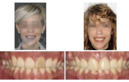 Extrusión ortodóncica, corrección clase II y rehabilitación implante en 21