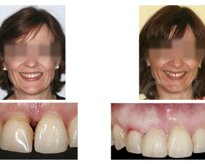 Implante post exodoncia, protocolo BOPT, desprogramación ATM y carga inmediata