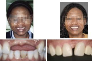Ortodoncia regeneradora en la ausencia de tres dientes anteriores