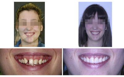 Caso 6 – Agenesia de laterales y DCM diagnosticado y tratado con cambio de paradigma