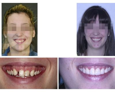 Agenesia de laterales y DCM diagnosticado y tratado con cambio de paradigma