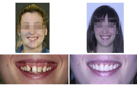 Caso 7 antes y después