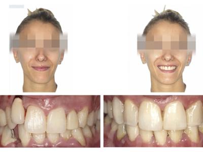 Caso 7 – Fracaso tisular implantológico y abordaje interdisciplinario para la resolución del mismo y de su oclusión