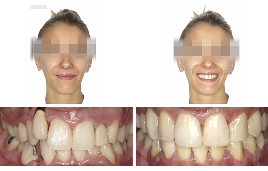 Caso 8 antes y después