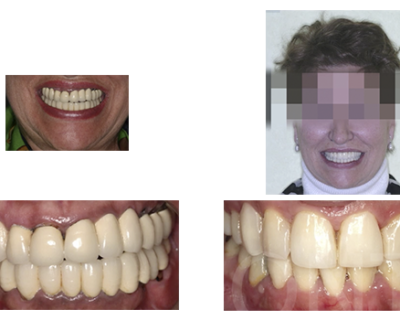 Rehabilitación superior implantosoportada y desprogramación previa con provisionales