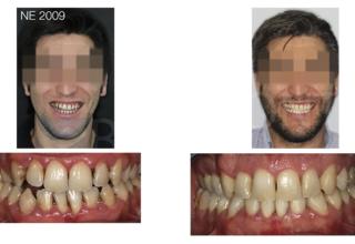 Ortodoncia intersisciplinaria con corticotomia y oclusión final bioestética