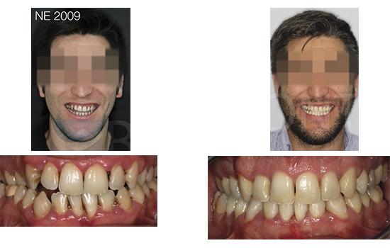 Caso 10 antes y después