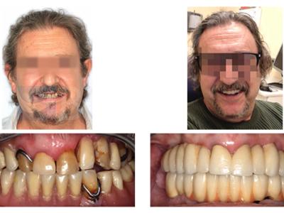 Caso 10 – Rehabilitación implantosoportada con carga inmediata y recuperación de la dimensión vertical y los tejidos