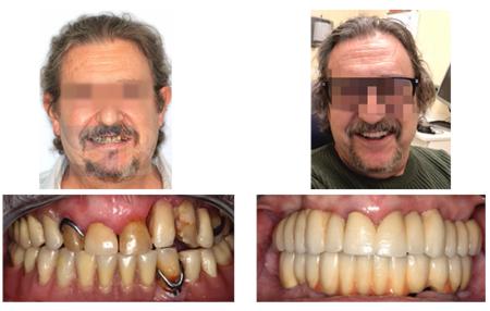 Rehabilitación implantosoportada con carga inmediata y recuperación de la dimensión vertical y los tejidos