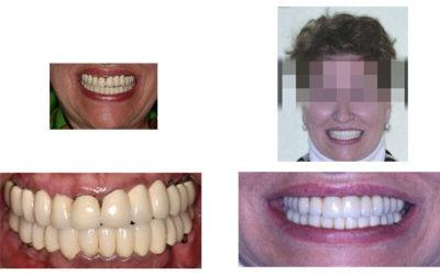 Caso 8 – Rehabilitación superior implantosoportada y desprogramación previa con provisionales