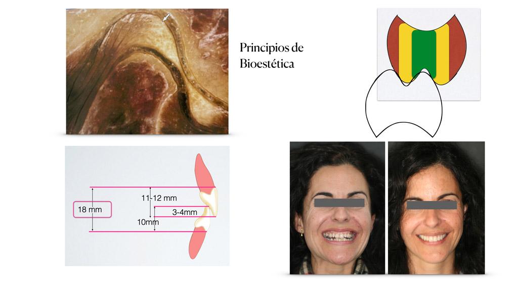 caso-14-caratula-leccion